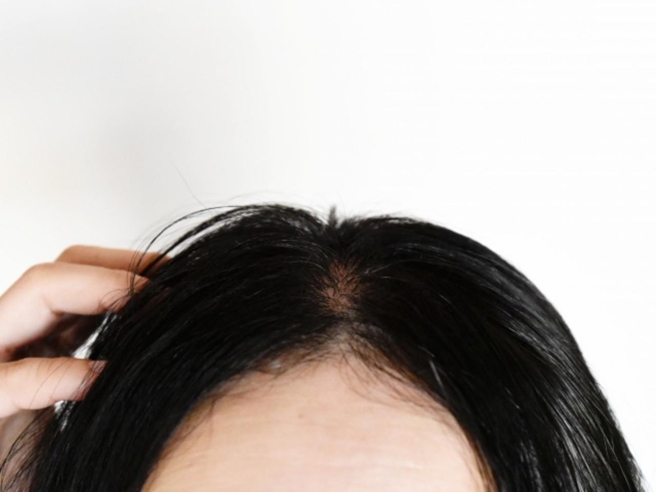 40代〜50代女性に多い薄毛・抜け毛の種類