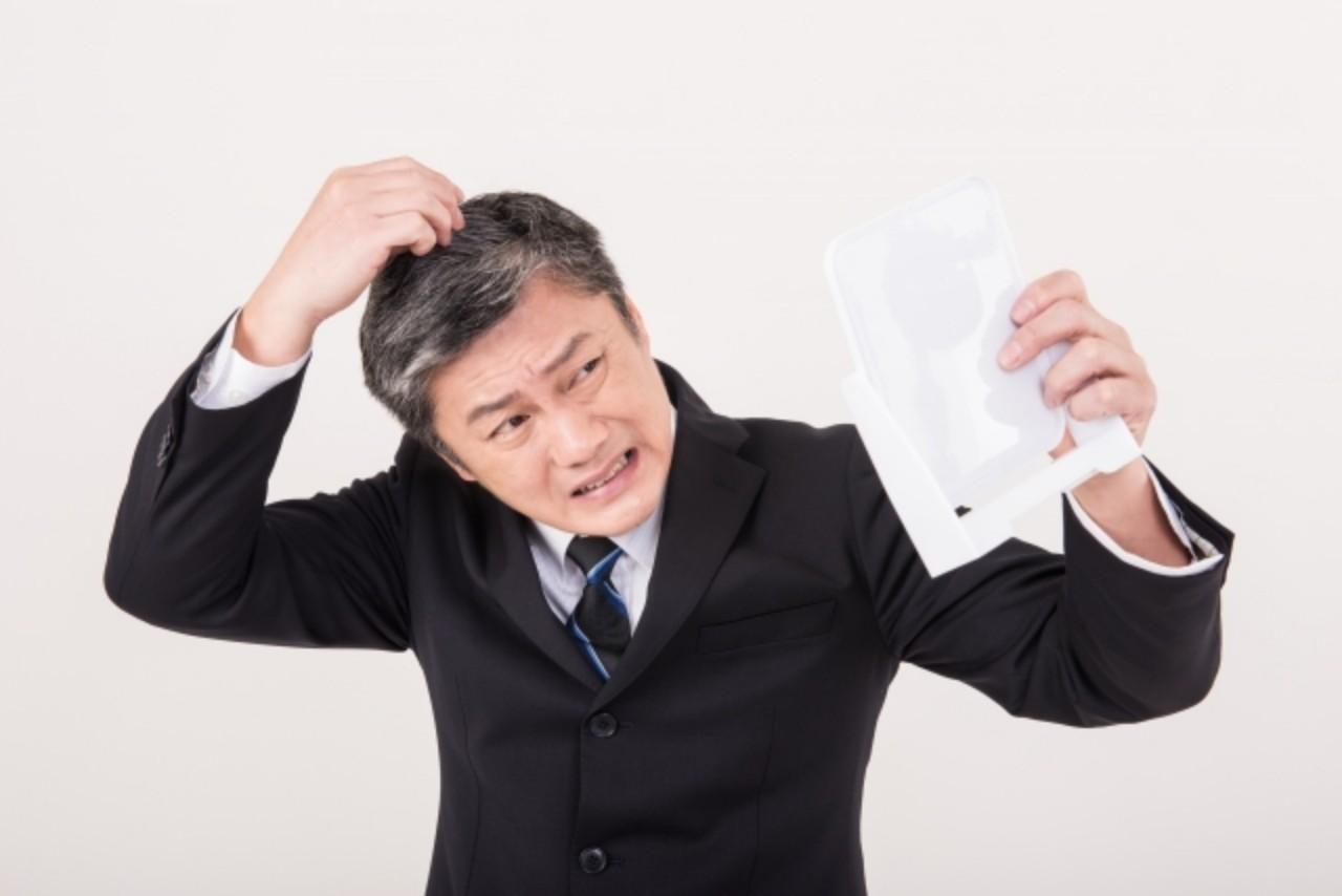 AGA治療は薄毛に効果はある?治療内容・期間と費用を徹底解説!