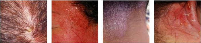 カラーアレルギーによる症状例