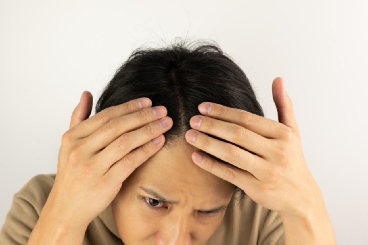 AGA(男性型脱毛症)の治療の内容