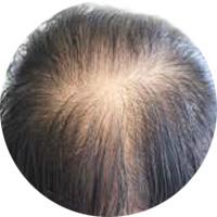 女性によくある薄毛パターン びまん性脱毛症