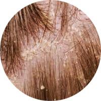 女性によくある薄毛パターン ひこう性脱毛症
