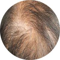 女性によくある薄毛パターン 女子男性型脱毛症