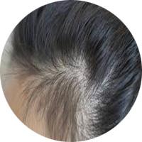 女性によくある薄毛パターン 牽引性脱毛症