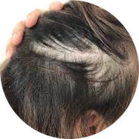 女性によくある薄毛パターン 抜毛症