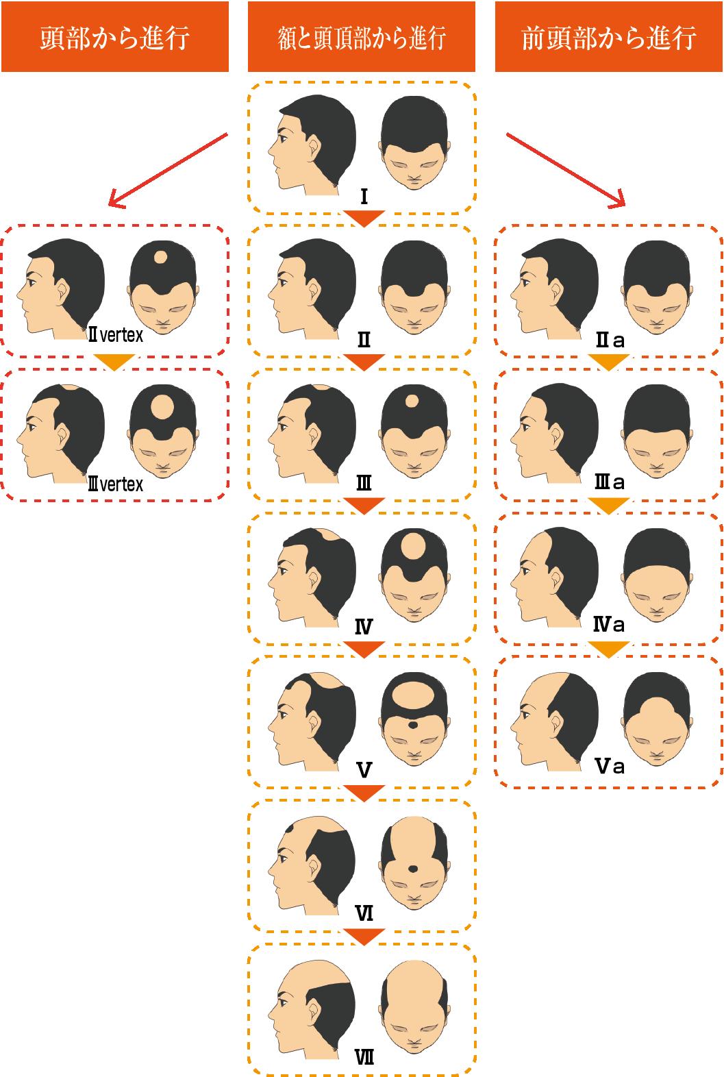 薄毛頭皮パターン(男性)